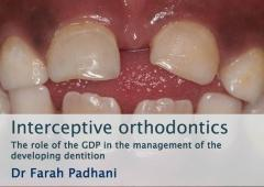 Interceptive orthodontics: The role of the GDP in the management of the developing dentition