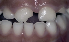 Trauma in the primary dentition