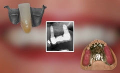 Treatment Options for Tooth Replacement and Bridge Design