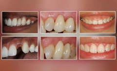 Aesthetic dentistry: Pontic design, soft tissue grafting, emergence profile and crown lengthening