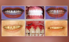 Smile Design: a Guide to Tooth Position