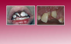 Trauma in the permanent dentition: Luxation injuries